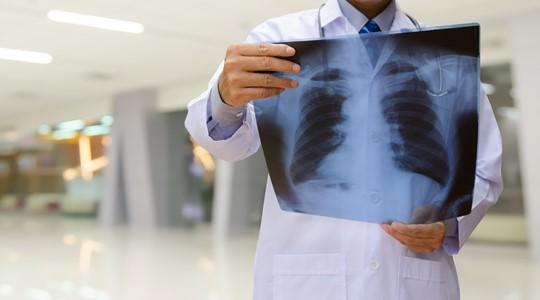 Hoe werken je longen